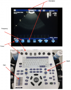 Figure 2.1 Basic functions from a standard portable ultrasound scanner.